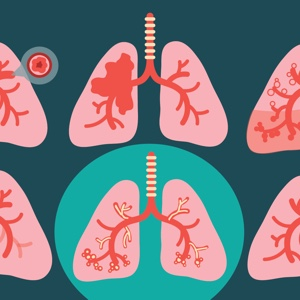 What COPD Is Not