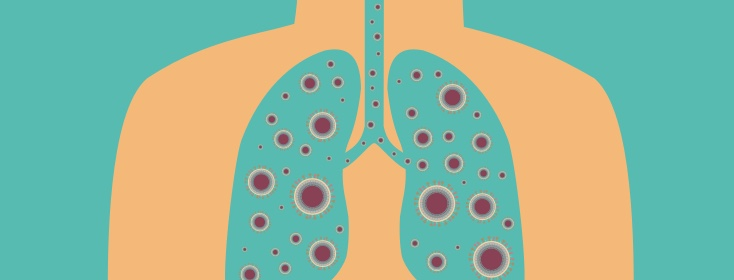 Pneumonia & COPD: All You Need To Know.