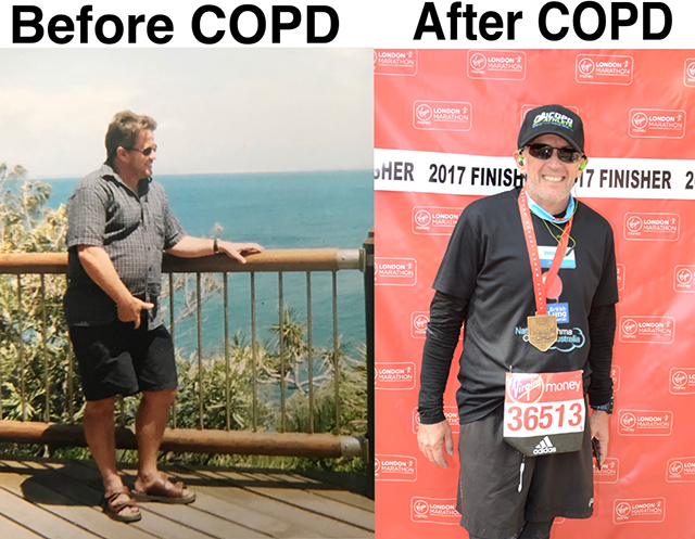 Interview with Russell Winwood (COPD Athlete)