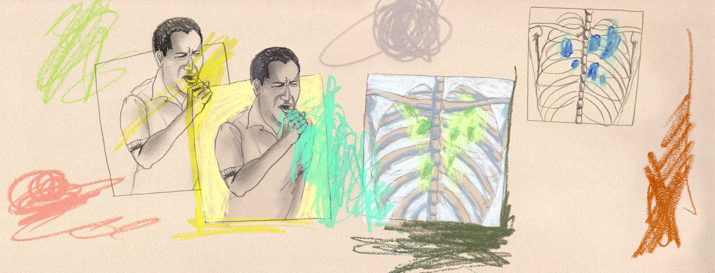an sketch drawing with lots of colorful scribbles depicting a man coughing and an x-ray of the rib cage with colorful scribble damage to the lungs.
