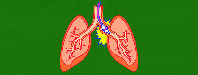 clinical image of a targeted lung denervation